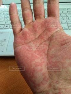 蕁麻疹の写真・画像素材[2683600]