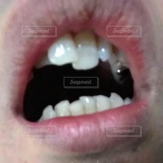 歯並び悪いの写真・画像素材[2726199]