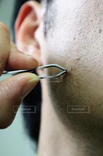 ヒゲの埋没毛を抜く男性のクローズアップの写真・画像素材[3193059]