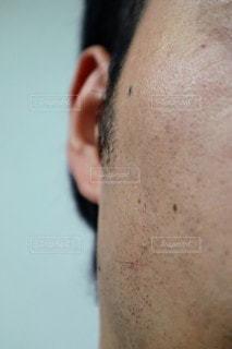 ヒゲの埋没毛のクローズアップの写真・画像素材[3193068]