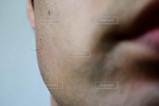 ヒゲの埋没毛のクローズアップの写真・画像素材[3193065]