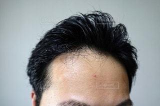若ハゲ男性のクローズアップの写真・画像素材[3509599]