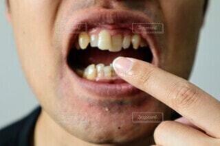 歯並びが悪い男性のクローズアップの写真・画像素材[3655907]