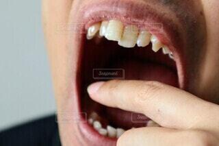 歯並びが悪い男性のクローズアップの写真・画像素材[3655913]