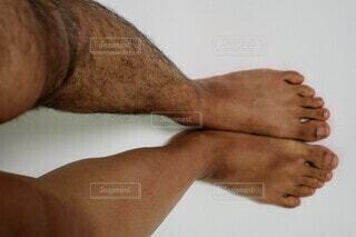脛毛の除毛ビフォーアフターの写真・画像素材[4067168]