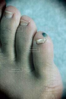 足の小指の内出血の写真・画像素材[4339385]