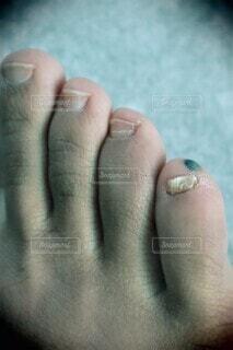 足にできた血豆のクローズアップの写真・画像素材[4339393]