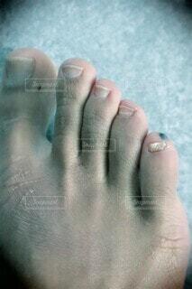 足の小指にできた血豆の写真・画像素材[4339394]