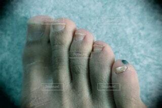 足の小指の血豆の写真・画像素材[4339395]