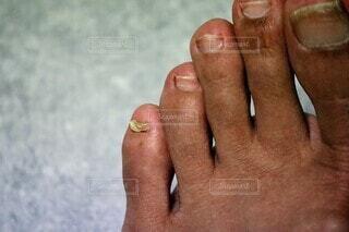 小指の爪が剥がれそうの写真・画像素材[4590361]