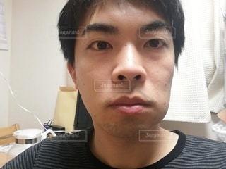 抜歯後の腫れの写真・画像素材[3115178]