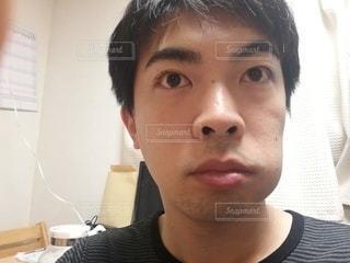 抜歯後、頬が腫れるの写真・画像素材[3115179]