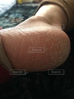 乾燥かかとのクローズアップの写真・画像素材[2925013]