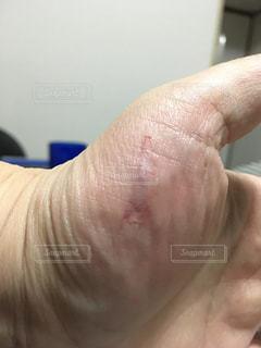 手の怪我の写真・画像素材[2707362]