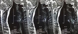 MRI - No.146926