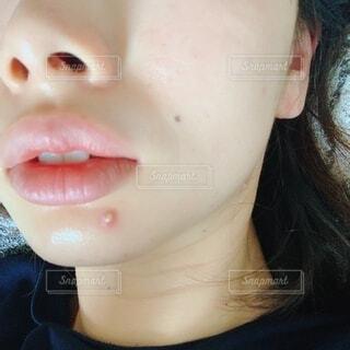 顎ニキビの写真・画像素材[4799182]