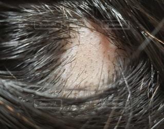 円形脱毛症の写真・画像素材[2914915]