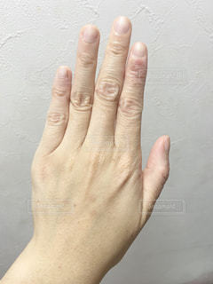 手荒れした指の写真・画像素材[3284364]