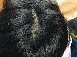 子供の頭皮の写真・画像素材[3011622]