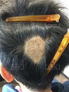 円形脱毛症の写真・画像素材[3737095]