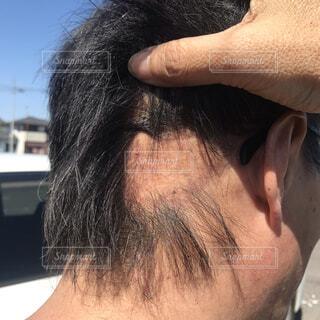 男の後頭部脱毛症の写真・画像素材[3803317]