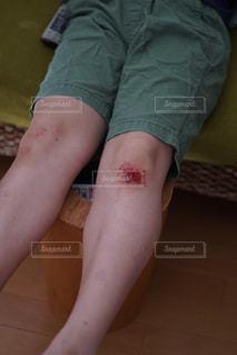 膝に傷のある子供の写真・画像素材[2958133]