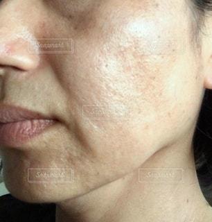 女性の荒れた肌の写真・画像素材[3326744]