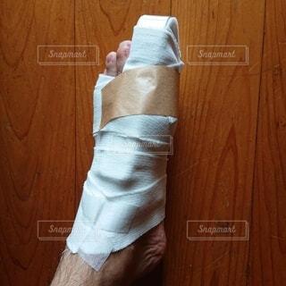 骨折 包帯がほどけてきた。の写真・画像素材[3722559]