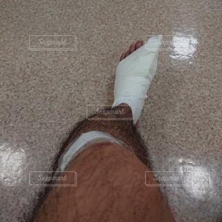 左足親指骨折の写真・画像素材[3726400]