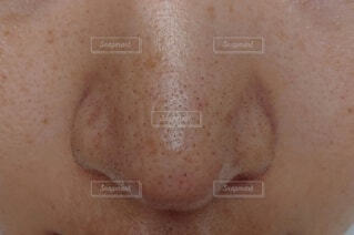 鼻の写真・画像素材[3719508]
