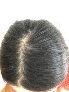 頭皮 薄毛 女性の薄毛 分目の写真・画像素材[3521649]