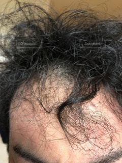 ハゲ頭の写真・画像素材[3717061]