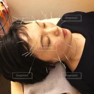 美容鍼でアンチエイジング中の写真・画像素材[3969166]