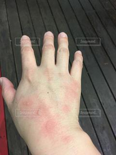手を火傷したの写真・画像素材[2348464]