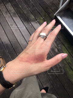 手に火傷を負い赤くなってるの写真・画像素材[4379095]