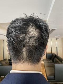 頭皮が見える男性の写真・画像素材[4776688]