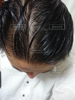 薄毛が目立つ男の頭髪の写真・画像素材[1553655]