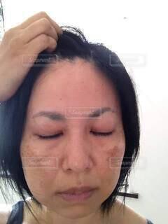 前髪を上げ目をつぶる、頬にシミのある女性。の写真・画像素材[4729269]