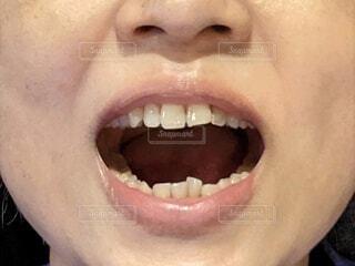 歯並びの悪い女性の口の中。口を開けたところ。の写真・画像素材[4772511]