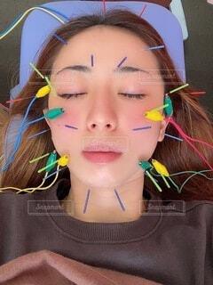 美容鍼、小顔効果。の写真・画像素材[4819821]