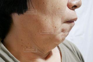 脂肪がついた顎のクローズアップの写真・画像素材[2390423]