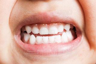 歯並び - No.959624