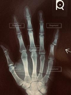 指の骨の写真・画像素材[2797172]