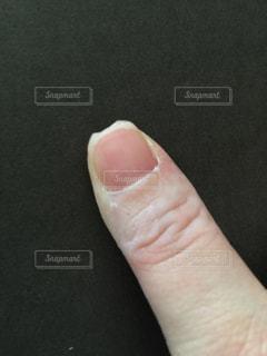 親指の爪割れの写真・画像素材[1022475]