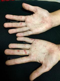 手足口病に罹った手。 - No.821119