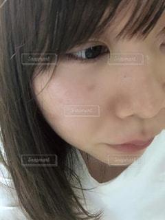 肌荒れの写真・画像素材[2126631]