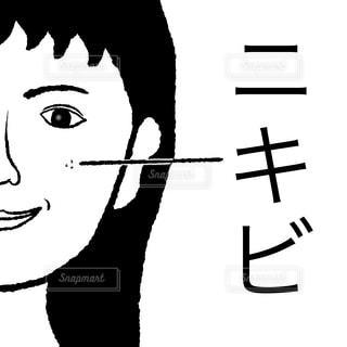 ニキビの写真・画像素材[1526241]