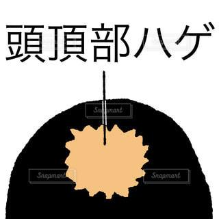 頭頂部ハゲの写真・画像素材[1654981]