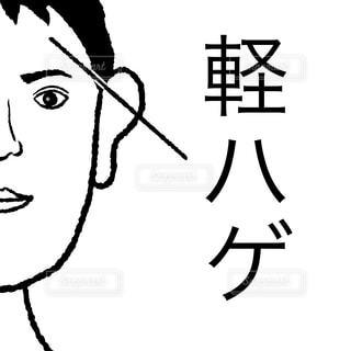 軽ハゲの写真・画像素材[1678874]
