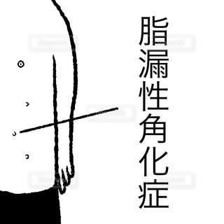脂漏性角化症の写真・画像素材[1997803]